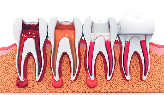 Root Canal Treatment - Smile Central